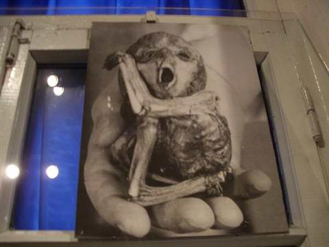 Supposed Birth Defect: Chernobyl Museum, Kiev